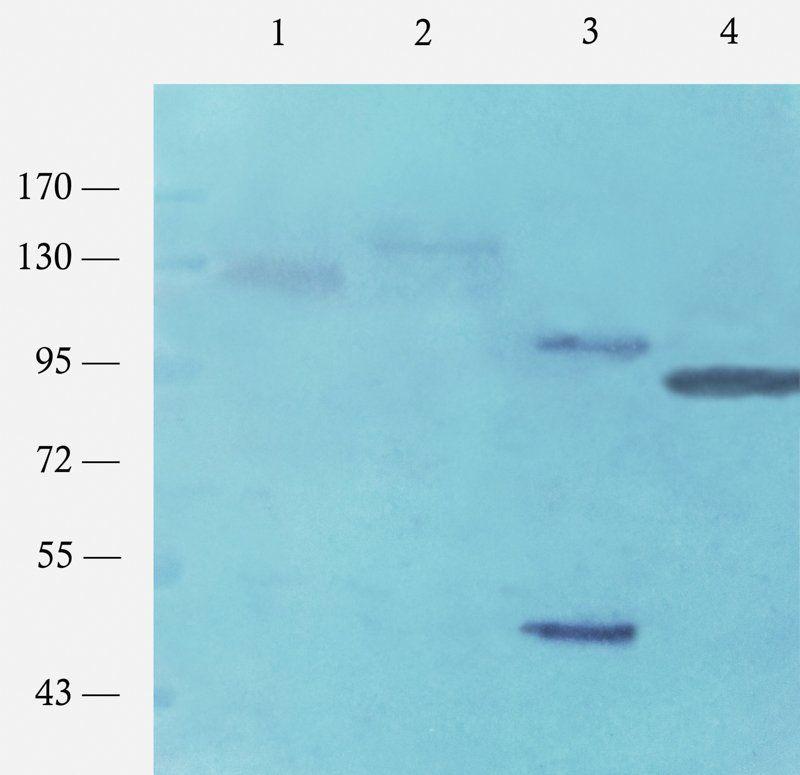 Western blot analysis of rat colon (lane 1), mouse brain (lane 2), mouse stomach (lane 3), rat testis (lane 4) using c-Kit antibody (1 ug/ml)