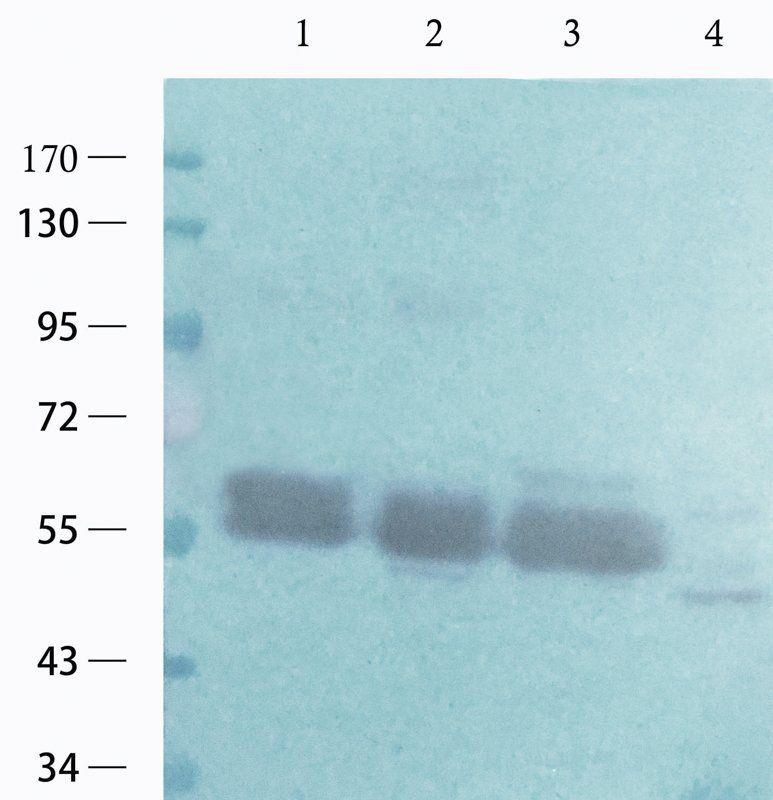 Western blot analysis of human breast cancer (lane 1),human ovary cancer (lane 2),human lung cancer (lane 3),Hela cells (lane 4) using c-Kit antibody (1 ug/ml)