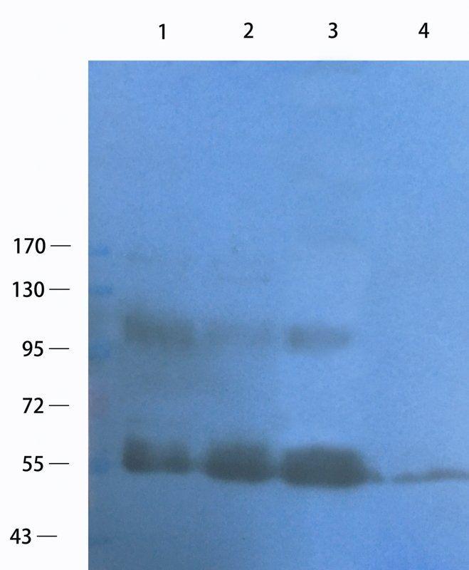 WB analysis of human breast cancer (lane 1),human ovary cancer (lane 2),human lung cancer (lane 3),Hela cells (lane 4) using c-Kit antibody (1 ug/ml)