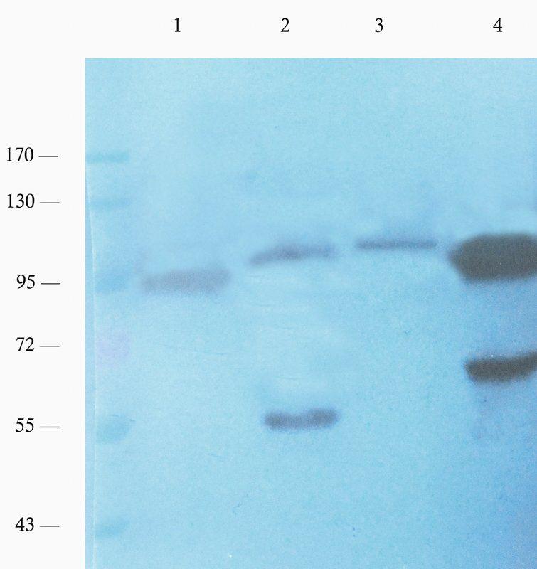 WB analysis of rat colon (lane 1), mouse brain (lane 2), mouse stomach (lane 3), rat testis (lane 4) using c-Kit antibody (1 ug/ml)