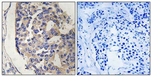 Immunohistochemical analysis of formalin-fixed and paraffin-embedded human breast carcinoma tissue using C1S antibody