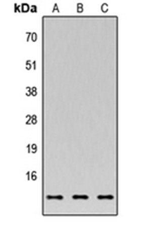 Western blot analysis of MCF7 (Lane1), NS-1 (Lane2), PC12 (Lane3) whole cell using C35 antibody