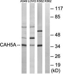 Western blot analysis of extracts from A549 cells, LOVO cells and K562 cells using CA5A antibody