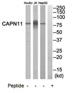 Western blot analysis of extracts from HepG2 cells, Jurkat cells and HuvEc cells using CAPN11 antibody