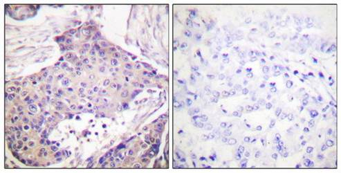 Immunohistochemical analysis of formalin-fixed and paraffin-embedded human breast carcinoma tissue using CARD6 antibody