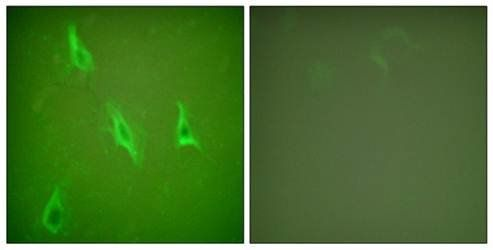 Confocal immunofluorescence analysis of HeLa cells using Caspase 10 antibody