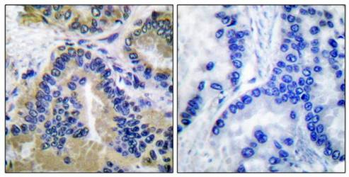 Immunohistochemical analysis of formalin-fixed and paraffin-embedded human lung carcinoma tissue using Caspase 10 antibody