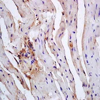 Immunohistochemical analysis of formalin-fixed and paraffin embedded mouse heart tissue (dilution at:1:200) using Caspase 12 antibody