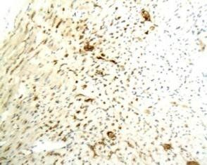 Immunohistochemical analysis of paraffin-embedded rabbit heart tissue using Caspase 3 antibody