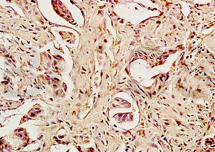 Immunohistochemical analysis of paraffin embedded human rectal cancer tissue using Caspase 8 antibody