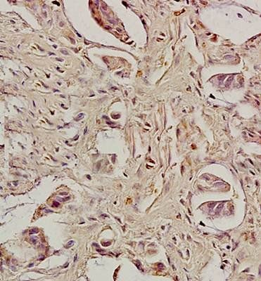 Immunohistrochemical analysis of formalin fixed and paraffin embedded human rectal carcinoma tissue using Caspase 8 antibody