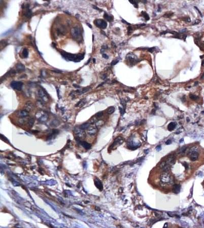 IHC-P of human colon carcinoma tissue (Caspase 9 antibody at 1:300)