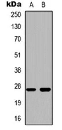 Western blot analysis of HeLa (Lane1), human liver (Lane2) whole cell using Cathepsin Z antibody