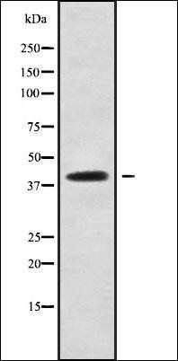Western blot analysis of HepG2 whole cell lysates using CCDC109A antibody