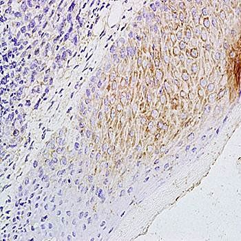Immunohistochemical analysis of formalin-fixed and paraffin embedded mouse foot tumor tissue using CCL21/6Ckine antibody