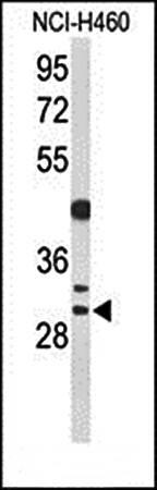 Western blot analysis of CCNB1IP1 antibody in NCI-H460 cell line lysates