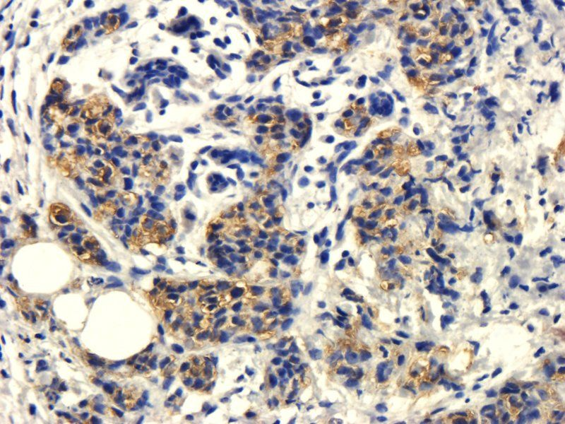 IHC-P image of human breast cancer tissue using CD105 antibody (dilution of primary antibody at 1:200)