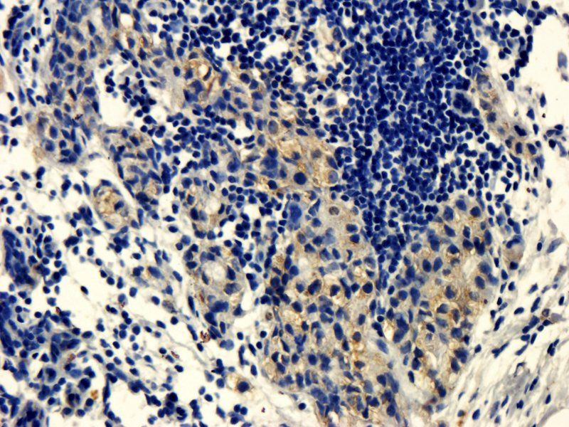 Immunohistochemical staining of paraffin embedded human breast cancer tissue using anti-CD105 (primary antibody at 1:200)