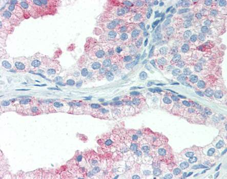 Immunohistochemical staining of paraffin embedded human prostate tissue using CD107b antibody (primary antibody at 1:200)
