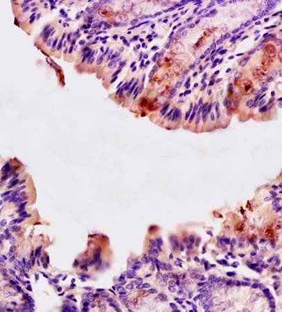 Immunohistochemical analysis of formalin fixed and paraffin embedded mouse small intestine tissue using CD10 antibody