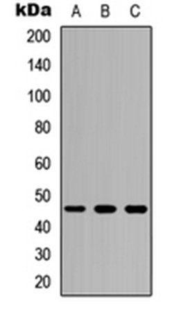 Western blot analysis of HEK293T (Lane1), Raw264.7 (Lane2), H9C2 (Lane3) whole cell using CD116 antibody