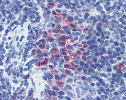 Immunohistochemical staining of paraffin embedded mouse spleen tissue using CD11b antibody (primary antibody at 1:200)