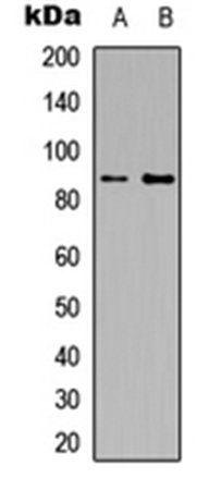 Western blot analysis of HEK293T (Lane1), Raw264.7 (Lane2) whole cell using CD124 antibody