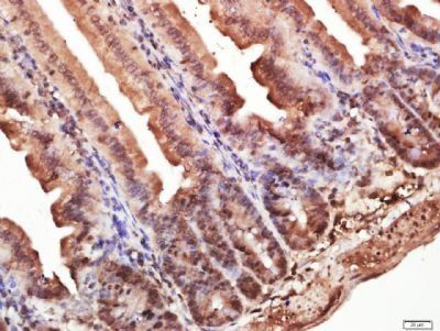 Immunohistochemical staining of mouse intestine tissue using CD127 antibody.