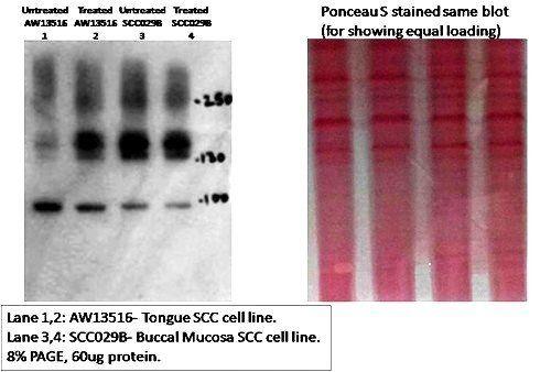 Western blot analysis of human cancer cell lysates using CD133 antibody [Reviews]