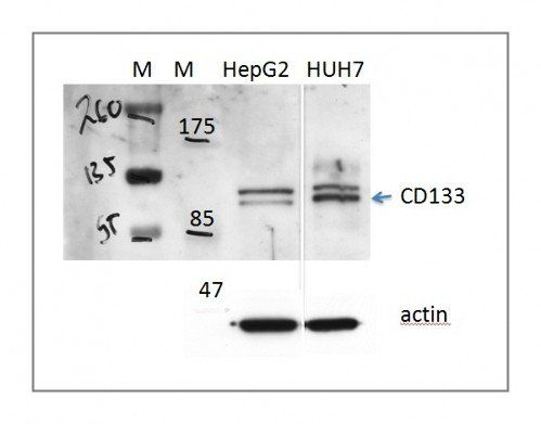 Western Blot on human cells using CD133 antibody (Protocol steps under Review A) [Reviews]