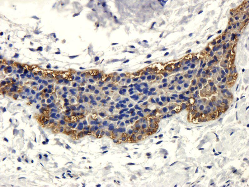 Immunohistochemical staining of human mammary fibroma tissue using anti-CD206 (dilution of primary antibody - 1:100)