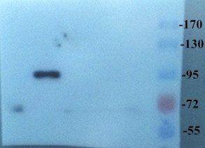 Western blot analysis of rat small intestine tissue using CD133 antibody (dilution at 1:200-1:1000 based on 1mg/mL)