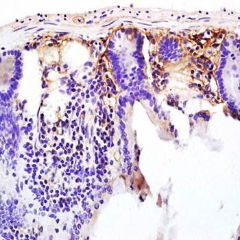 Immunohistochemical analysis of formalin-fixed and paraffin embedded mouse intestine tissue (dilution at:1:200) using CD13 antibody