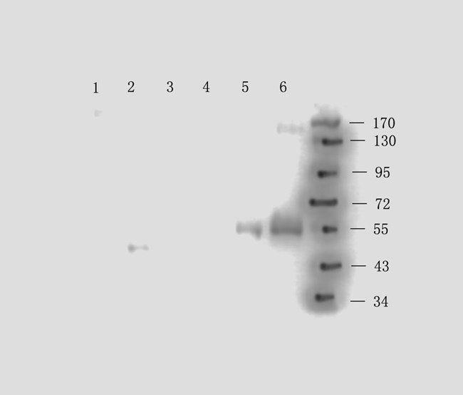Western blot analysis of guniea pig lymph (lane 1), rat brain (lane 2), mouse stomach (lane3), rat rectum (lane4), human gallbladder (lane 5), human lung cancer (lane 6) tissue using anti-CD163 (0.5 ug/ml)