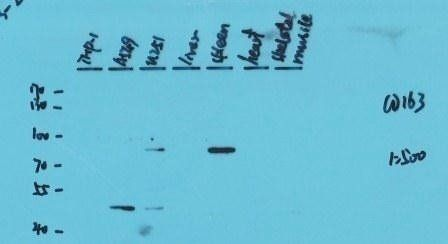 Western blot analysis of human cell lysates using CD163 antibody (please check application notes for details)