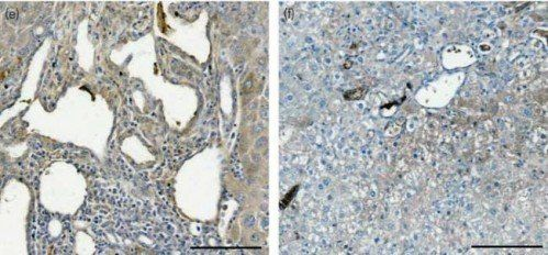 Immunohistochemical staining of paraffin embedded mouse liver tissue using CD163 antibody. (Dilution of primary antibody 1:200)