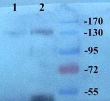 WB analysis of human breast cancel 25 (Lane1), breast cancel 24 (Lane2) using CD163 antibody (dilution at 1:100)