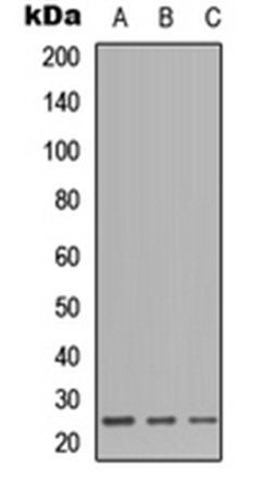 Western blot analysis of HEK293T (Lane1), Raw264.7 (Lane2), H9C2 (Lane3) whole cell using CD179b antibody