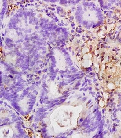 Immunohistochemical analysis of formalin fixed and paraffin embedded rat colitis tissue using CD18 antibody