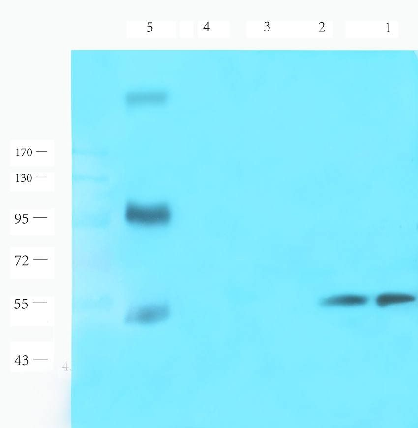 Western blot analysis of rat lymph node (lane 1), rat spleen (lane 2), rat lung (lane 3), mouse brain (lane 4), human breast cancer (lane 5), human ovarian cancer (lane 6) using CD19 antibody (1 ug/ml)