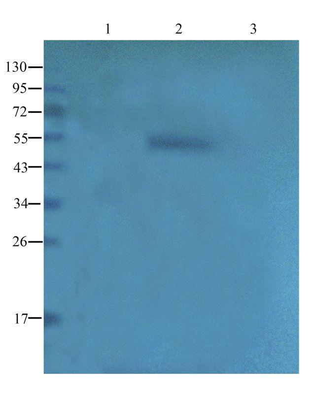 WB analysis of human thyroid tumor (lane 1), human breast cancer (lane 2), human thyroid cancer (lane 3) using CD20 antibody (1 ug/ml)