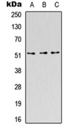 Western blot analysis of HEK293T (Lane1), Raw264.7 (Lane2), H9C2 (Lane3) whole cell using CD218b antibody