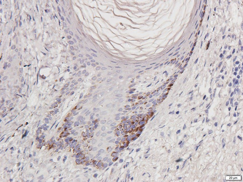 Immunohistochemical staining of paraffin embedded human breast cancer tissue using CD274 antibody (2.5ug/ml)