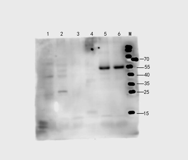 Western blot analysis of mouse heart, rat lung, rat spleen, A549, human breast cancer, human lung cancer (Lane 1 to Lane 6) using CD274 antibody (1 ug/ml)