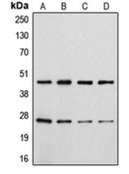 Western blot analysis of HeLa colchicine-treated (Lane 1), Jurkat (Lane 2), Raw264.7 colchicine-treated (Lane 3), H9C2 colchicine-treated (Lane 4) whole cell lysates using CD28 antibody