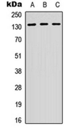 Western blot analysis of HepG2 (Lane 1), K562 (Lane 2), NIH3T3 (Lane 3) whole cell lysates using CD29 antibody