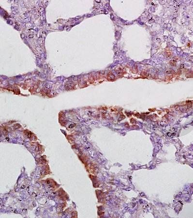Immunohistochemical analysis of formalin fixed and paraffin embedded rat lung tissue using CD2AP antibody