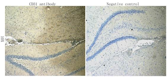 Immunohistochemical staining of paraffin embedded rat brain tissue using CD31 antibody (primary antibody at 1:100)
