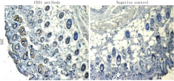 IHC-P staining of mouse skin tissue using anti-CD31 (dilution at 1:100)