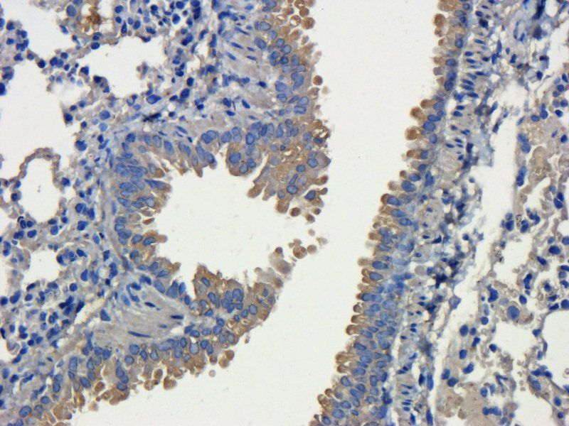 IHC-P staining of mouse lung tissue using CD31 antibody (dilution at 1:200)